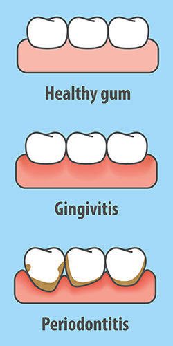 stages of gum disease from gingivitis to periodontitis