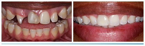 smile transformation with orthodontics and cosmetic dental bonding