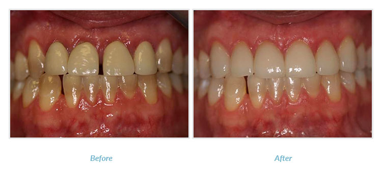 patient before and after porcelain crowns