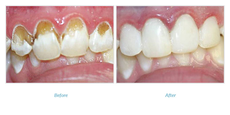 patient before and after cosmetic dental bonding